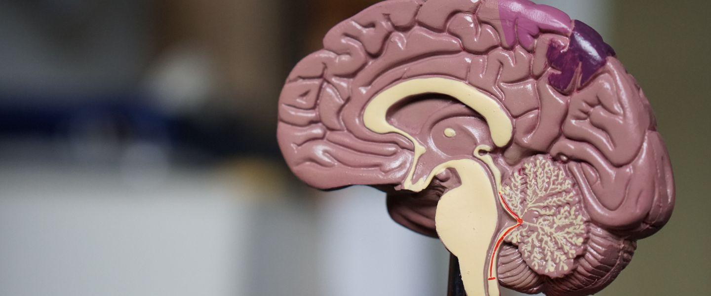 L'armée américaine développe sa propre interface cerveau-machine